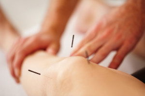 Acupuncture, Cupping and Soft Tissue Therapies